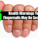 15 Health Warnings Your Fingernails May Be Sending