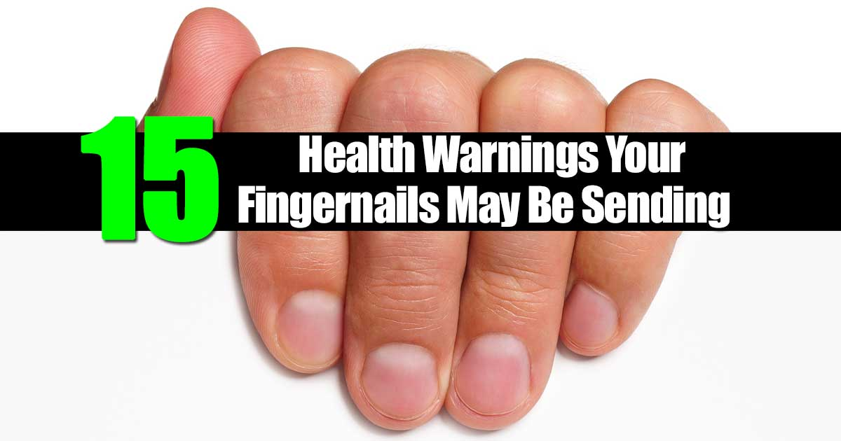 thick fingernails is one of the 15 health warnings fingernails show
