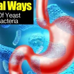 natural-ways-yeast-bacteria-06302015
