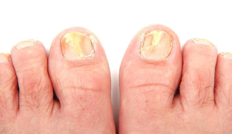 toenail-fungus-left-right-06302015Dollarphotoclub_41778942
