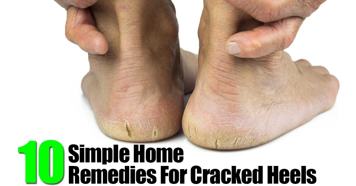 1000+ ideas about Cracked Heel Remedies on Pinterest ...