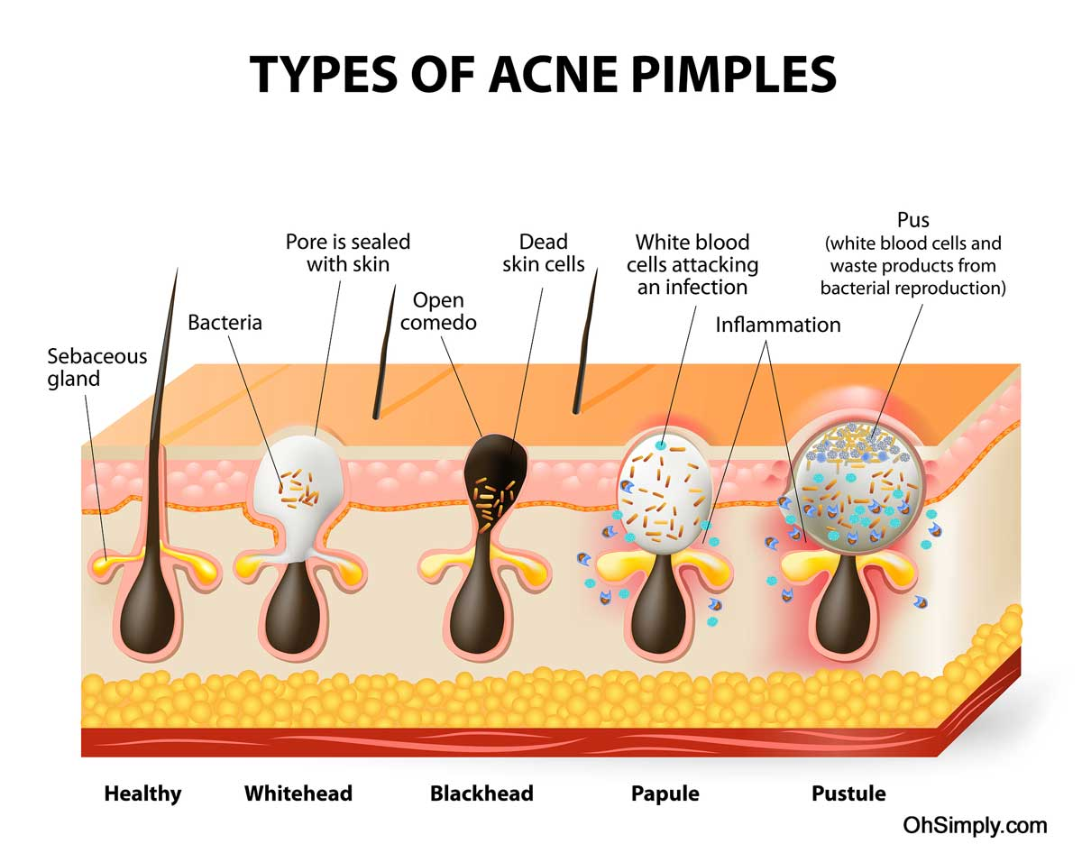 Graphic of the 5 Types of Acne Pimples