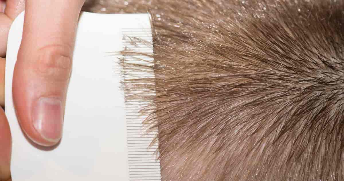 What you need to know about using coconut oil for hair ohsimply prevent and treat head lice with coconut oil ccuart Images
