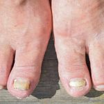 Toenail Fungus: Which Home Remedies Actually Work?