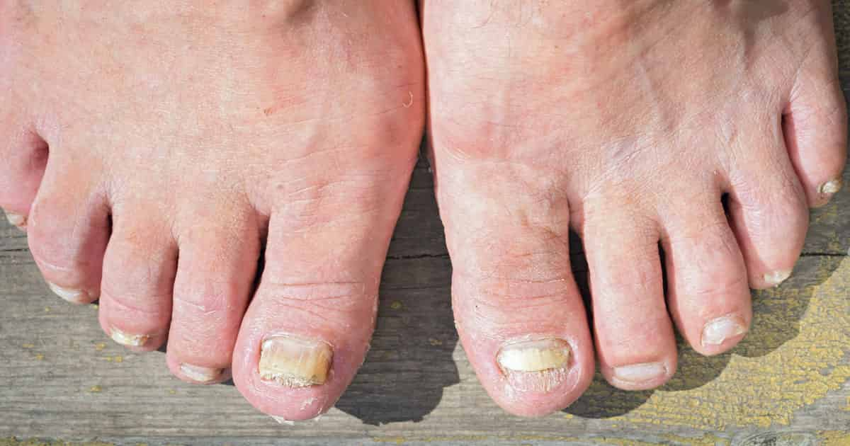 home remedies for toenail fungus these feet need badly
